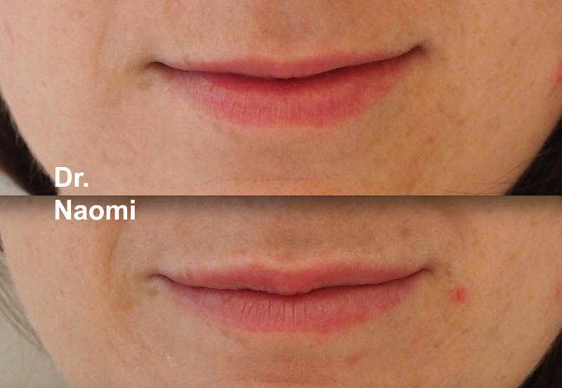 Before and after subtle lip augmentation for small upper lip
