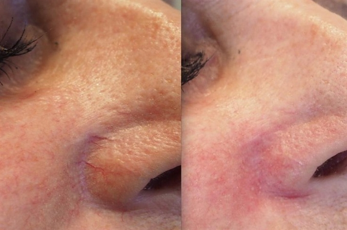Before and immediately after spider vein removal on nose
