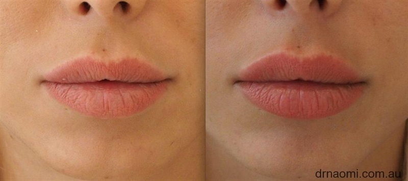 A Patient Who Understands Lip Filler Placement Best