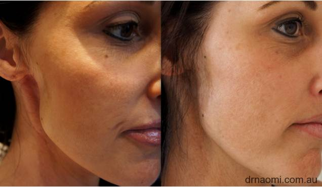 Dermal Filler for Reconstruction - Best Clinic Sydney for