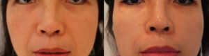 Before and after Nasolabial fold filler, injecting into the cheeks and the nasolabial folds