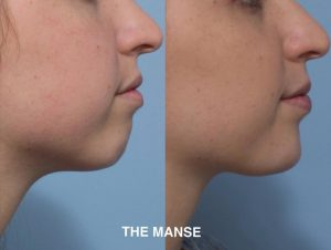 Before and after chin dermal filler