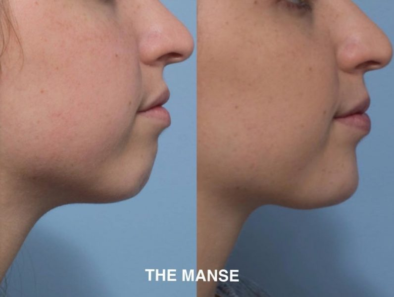 Chin injections create a more attractive profile