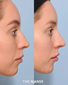 Before and after nose fillers