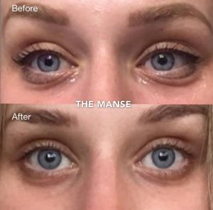 Before and after 1 treatment of PRP and troughbooster under eyes