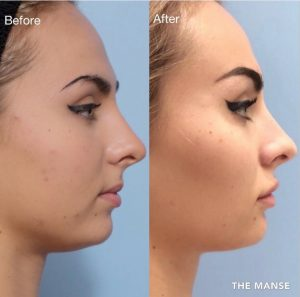 Before and after cheek fillers, lip fillers and marionette, chin and jowl fillers, face slimming and browlift