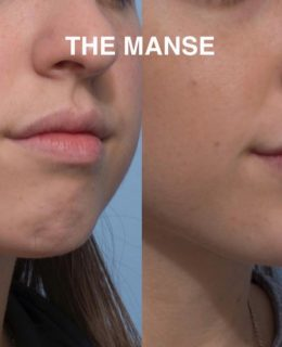 Dermal filler chin sydney