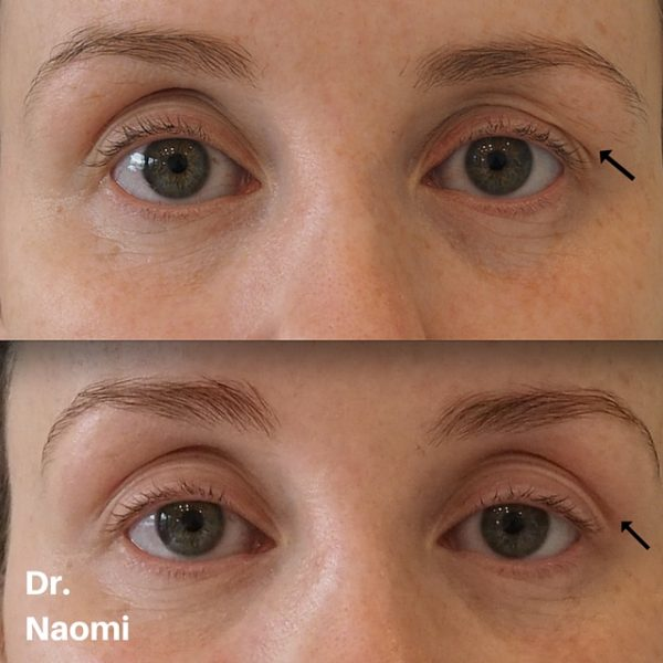 Eye Ageing Treatment Lasers Wrinkle Injections And