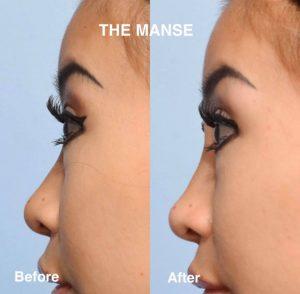 Nose bridge and tip lifting dermal filler