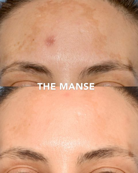 Before and after laser for melasma pigmentation
