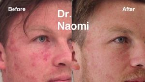 Before and after port wine stain laser treatment