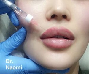 Dermal filler aftercare: What to do after you've had dermal filler