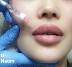 Dermal filler aftercare