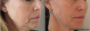 Filler for jowls and lower face
