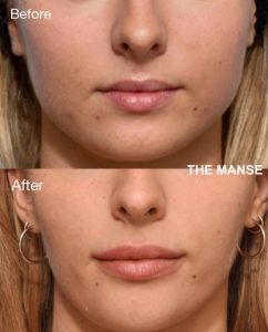 Before and after jaw slimming, chin filler and lip fillers