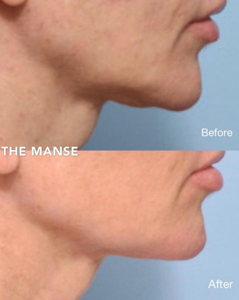 Before and after Jawline filler, PDO threads and double chin dissolving