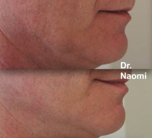 Laser for neck and facial redness