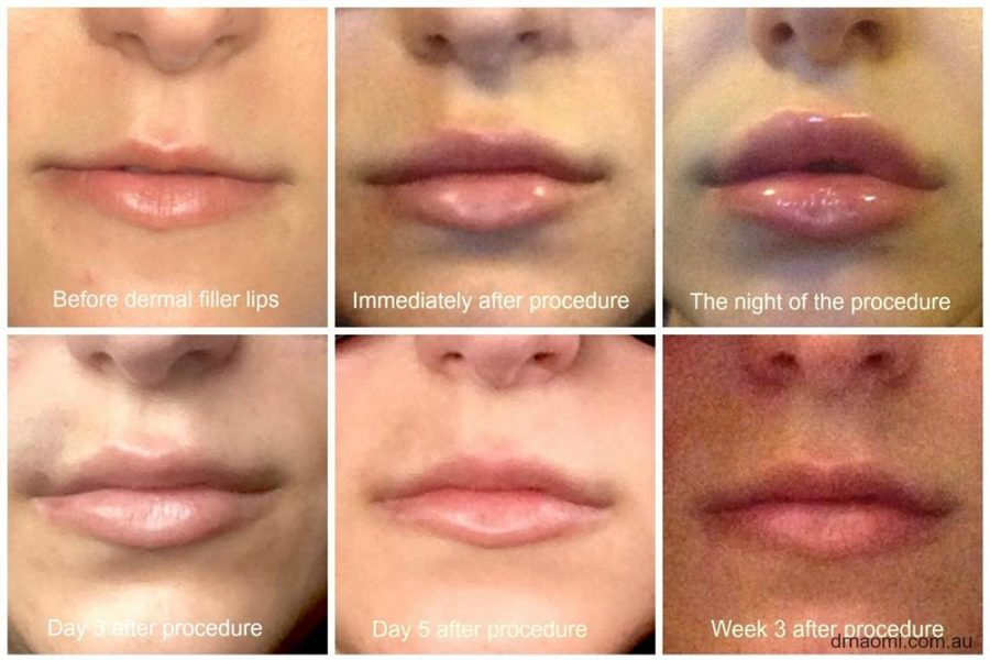 Dermal Filler in Lips Picture Diary - Best Clinic Sydney for