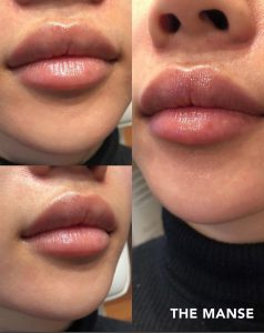 Lip fillers by The Manse