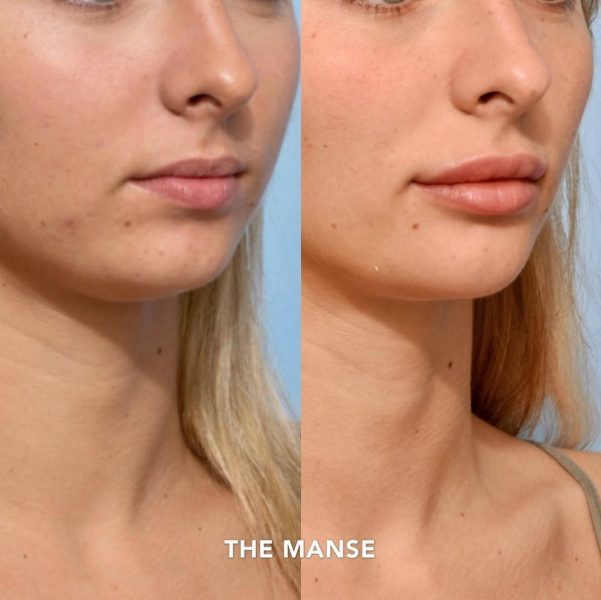 Before and after chin fillers, lip fillers and jaw slimming