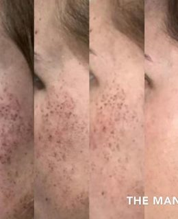Pigmentation treatment diary Day 1, 3, 5 and 7