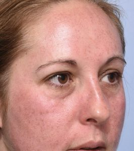 Redness immediately after IPL treatment