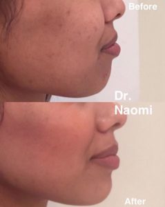 before and after chin fillers