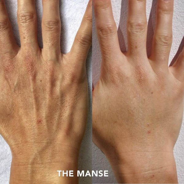 Before and after hand dermal fillers