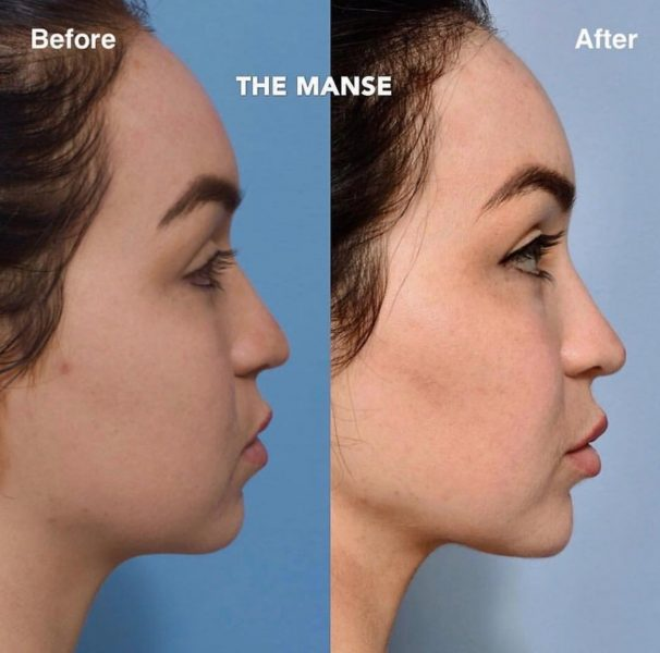 Liquid Facelift: Multiple areas of injectables, and double chin injections
