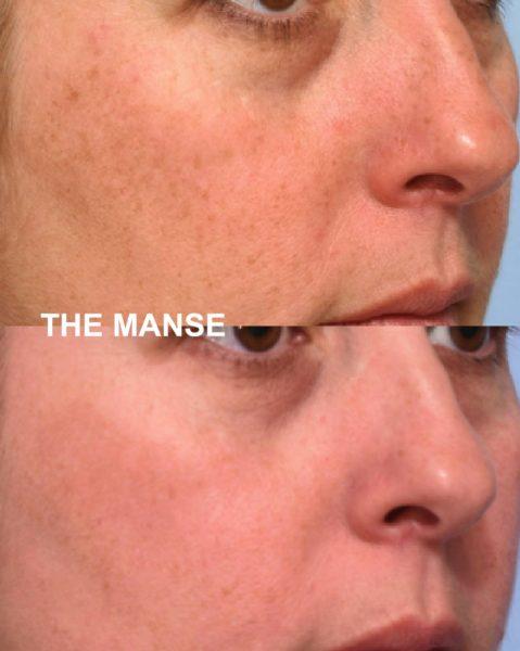 IPL freckle removal sydney