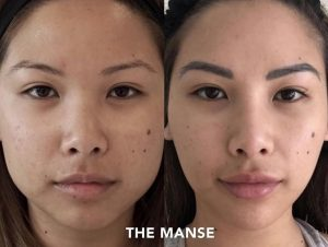 Injectables for the asian face