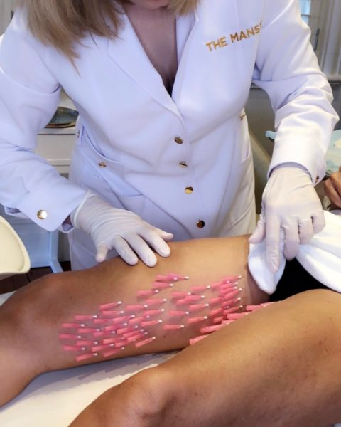 New treatment for cellulite 2018: PDO threads