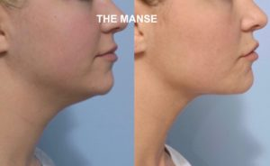 Before and after jawline fat dissolving