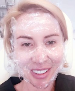 Face numbing before Microlaser Peel