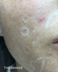 acne scarring for TCA