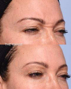 Before and after antiwrinkle injections frown lines