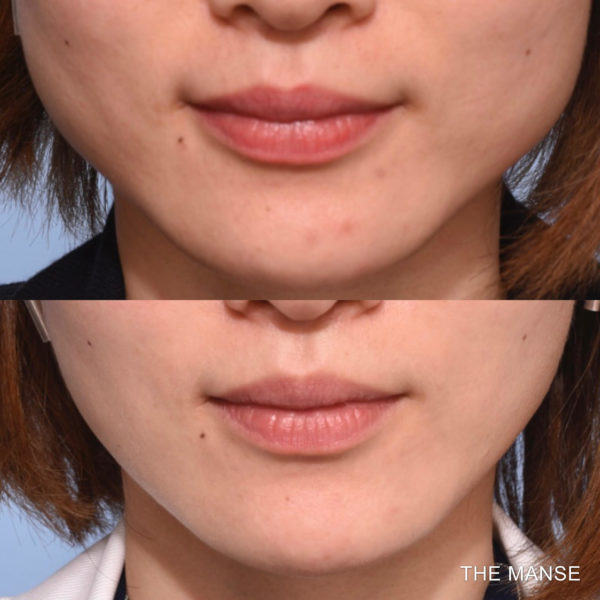 Face slimming injections before and after
