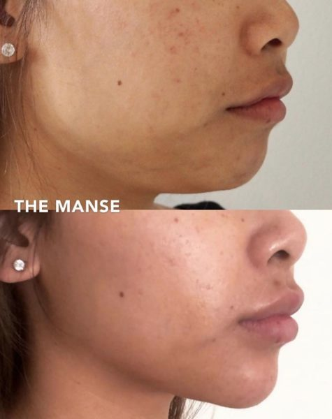 Jawline slimming using wrinkle injections  and other injectables