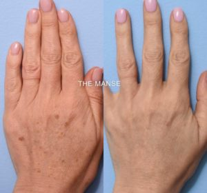hand rejuvenation sydney