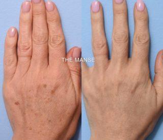 hand rejuvenation sydney