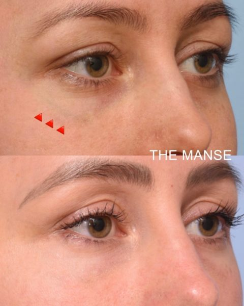 Before and after blue vein removal with laser