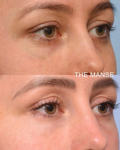 Facial vein removal Sydney. Here we have removed the patients blue vein from under her eye,