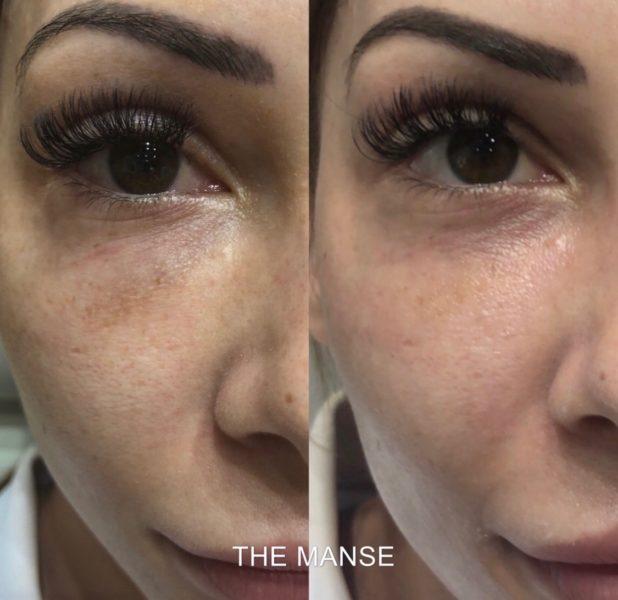 Before and after removal of dermal filler under eyes using hyalase
