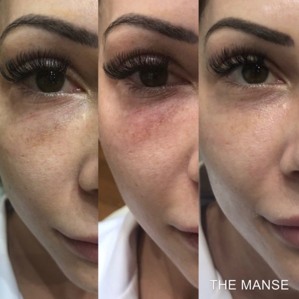 dermal filler dissolving with hyalase