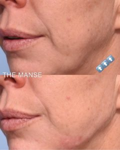 Jawline filler to improve the appearance of jowls