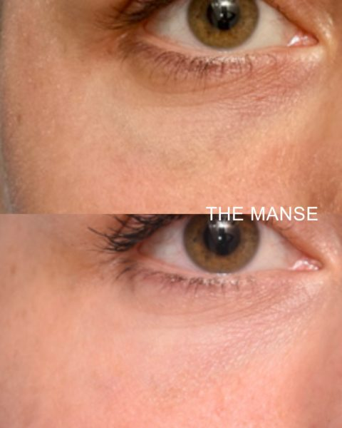 Before and after blue vein removal with laser.