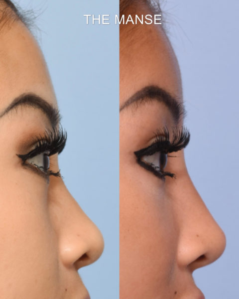 Before and after forehead filler, nose filler tear trough filler