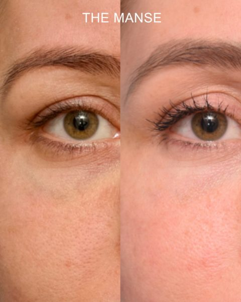 Before and after laser for dark vein and dermal filler for tear troughs.