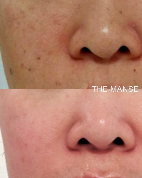 Before and after pigmentation, mole and freckle removal