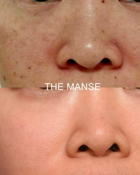 Freckle and mole removal face